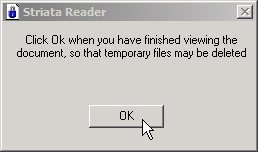 striata-reader-delete-temporary-files.jpg